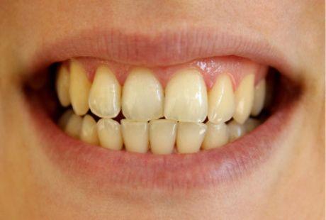 Jangan Khawatir Gigi Kuning Tidak Selalu Buruk Kok
