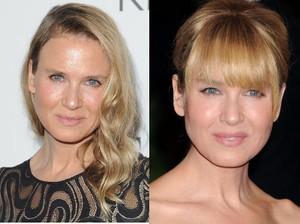 Takut Gagal Botox Seperti Renee Zellweger, Wanita Mulai Beralih ke Notox