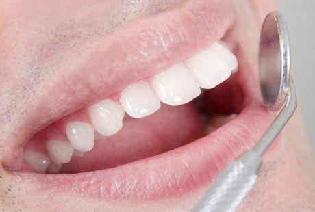 Makin Tua Gigi Bisa Makin Maju Begini Penjelasan Dokter