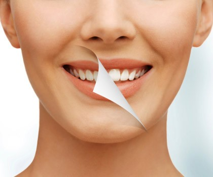Setelah Rapi Dengan Behel Ini Perawatan Gigi Yang Jadi Favorit