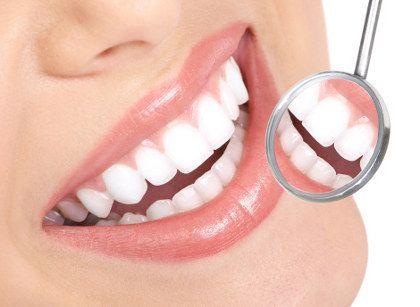Variasi Warna Putih Yang Banyak Diminati Pasien Veneer Gigi
