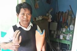 Lawan Diskriminasi Kusta, Ali Bantu Sesama Lewat Lengan dan Kaki Palsu