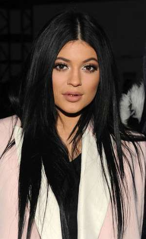 Suntik Filler di Bibir Meningkat 70% Setelah Pengakuan Kylie Jenner