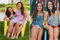 Sejak lahir, sang ibu, Joanne langsung mengetahui ada yang berbeda dengan putrinya ini. Apalagi ketika dibandingkan dengan saudara kembarnya, Danyka yang tidak mengalami kondisi serupa. Parkes Weber Syndrome terjadi karena adanya mutasi pada gen RASA-1 di tubuhnya, sehingga mengakibatkan kelenjar getah bening di kakinya tak berfungsi.