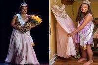 Bahkan bulan lalu, gadis yang masih berumur 19 tahun itu memenangkan sebuah kontes kecantikan yang diselenggarakan di kota kelahirannya, Campbellton, New Brunswick, Kanada. Ia tetap percaya diri meski diminta memakai bikini atau gaun cantik untuk pemotretan. Ia berharap kemenangannya itu akan meningkatkan kesadaran masyarakat tentang kondisinya. (Foto: Barcroft/Daily Mail)