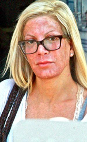 Keluar dari Klinik Kecantikan, Wajah Tori Spelling Merah Seperti Terbakar