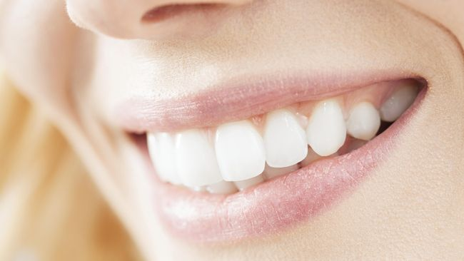 Penyebab Penurunan Gusi Yang Bisa Bikin Gigi Ngilu
