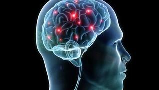 Umur Otak Bisa Prediksi Kematian Lebih Awal