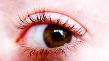 Kenali Kutu pada Bulu Mata Anda
