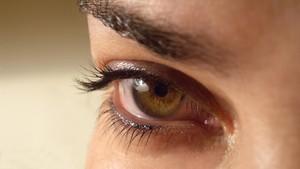 Penyebab dan Cara Menghentikan Mata Berair