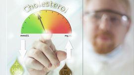 Mengenal Cara Kerja Kolesterol dalam Tubuh