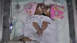 Bayi Kembar Siam Asal Tapanuli Utara Dirawat di Medan