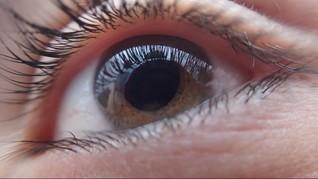 Demi Mirip Kartun, Model Swedia Ubah Warna Iris Mata