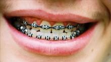 Cara Baru Rapikan Gigi dengan Behel Tanpa Kawat