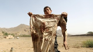 UNICEF: Seribu Anak Tewas dan Terluka Akibat Konflik Yaman