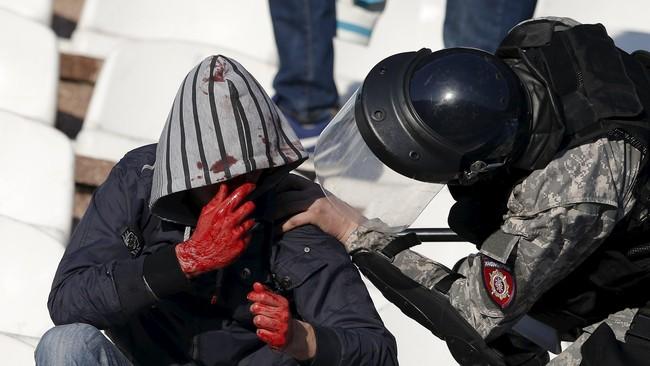 Seorang suporter yang terluka sedang diperiksa polisi. Karena kerusuhan di laga tersebut 35 polisi terluka dan 41 orang suporter ditangkap.