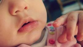 Dermatitis Atopik, Tak Cuma Gara-gara Cubit Pipi Bayi