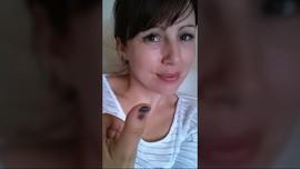 Kuku Ibu Jari yang Menghitam karena Diserang Kanker Ganas