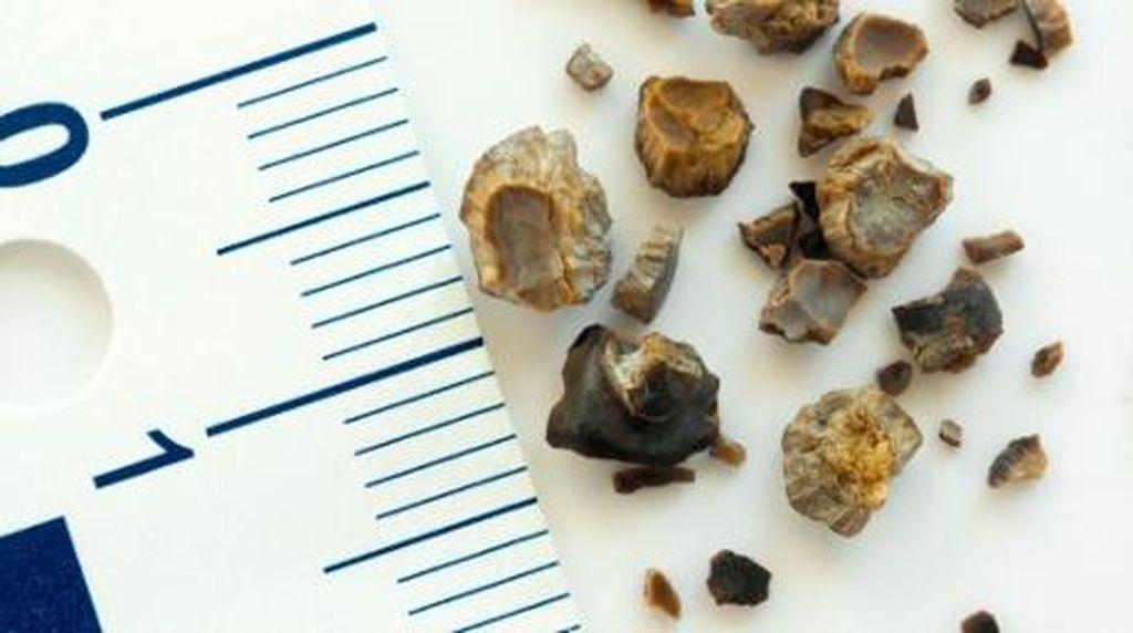8 Tanda Kemungkinan Memiliki Batu Ginjal