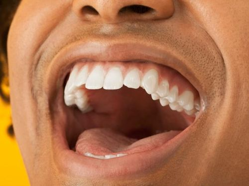 Wow! Ilmuwan Kini Sudah Bisa Ciptakan Pita Suara Sintetis