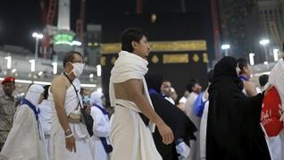Cara Mamah Dedeh Atasi Dehidrasi, Panas Dalam Saat Naik Haji
