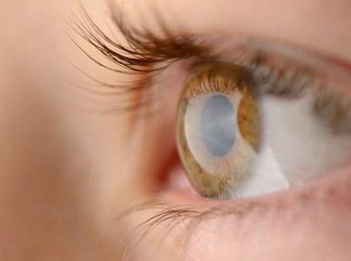 Mata Kering, Apa Sebabnya?