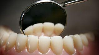 4 Bahaya Gigi Berlubang Pada Anak