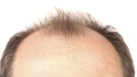 Pria Botak Rentan Kena Kanker Usus Besar