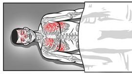 Patah Tulang Dada Penyebab Kematian Siyono
