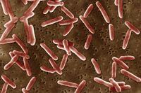 Proteus Morganii. Termasuk flora normal kulit, bakteri ini bisa saja menyebabkan diare jika daya tahan tubuh seseorang sedang lemah. (Foto: BSIP/UIG Via Getty Images)