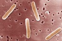 Salmonella Typhimurium. Bakteri ini adalah penyebab demam tifoid, yang ditandai dengan rasa lemas, mual dan muntah. (Foto: BSIP/UIG Via Getty Images)