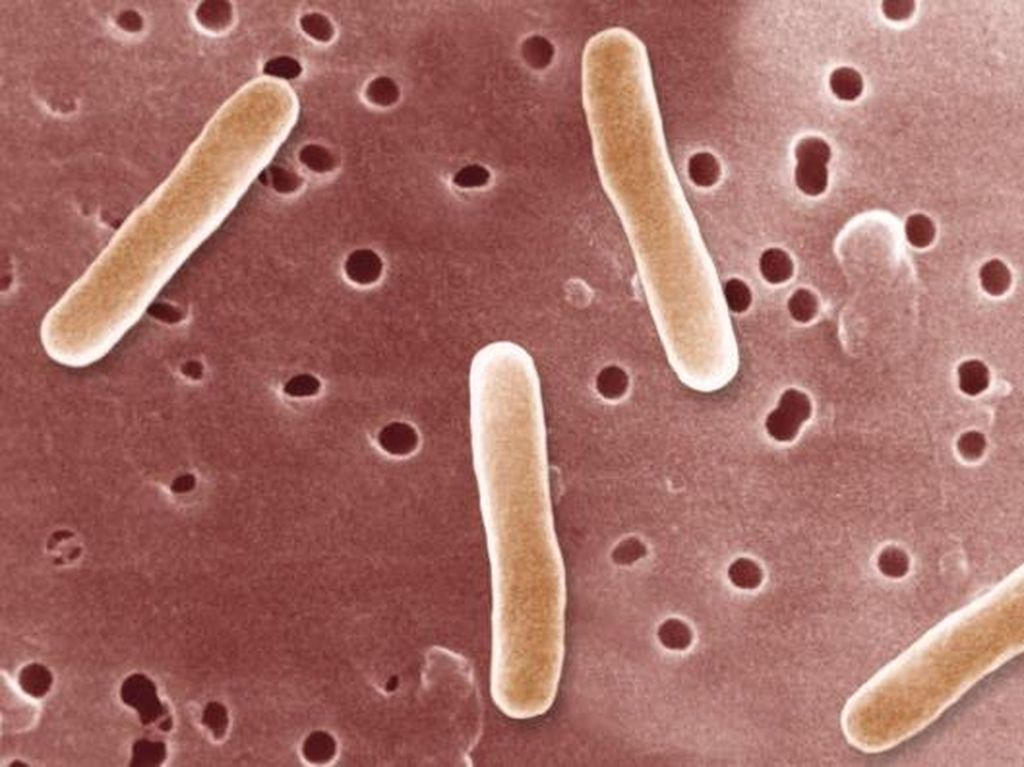 Bakteri Super Baru Jadi Penyebab Wabah Demam Tifoid di Pakistan