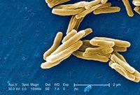 Mycobacterium Tuberculosis. Bakteri ini diketahui menginfeksi paru-paru dan menyebabkan penyakit tuberkulosis (TB). Kurang lebih 1,5 juta orang meninggal setiap tahunnya akibat penyakit ini. (Foto: Media for Medical/Getty Images)