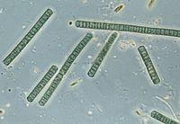Oscillatoria. Bakteri ini sangat unik karena memiliki klorofil dan bisa melakukan fotosintesis. Biasa ditemukan di air tawar, bakteri ini bisa terminum dan menyebabkan diare. (Foto: DeAgostini/Getty Images)