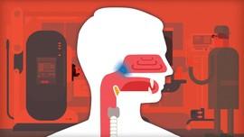 Mengenal Lebih Dalam Kanker Nasofaring