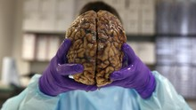 Demensia Alzheimer, Kerusakan dan Kematian Fungsi Otak