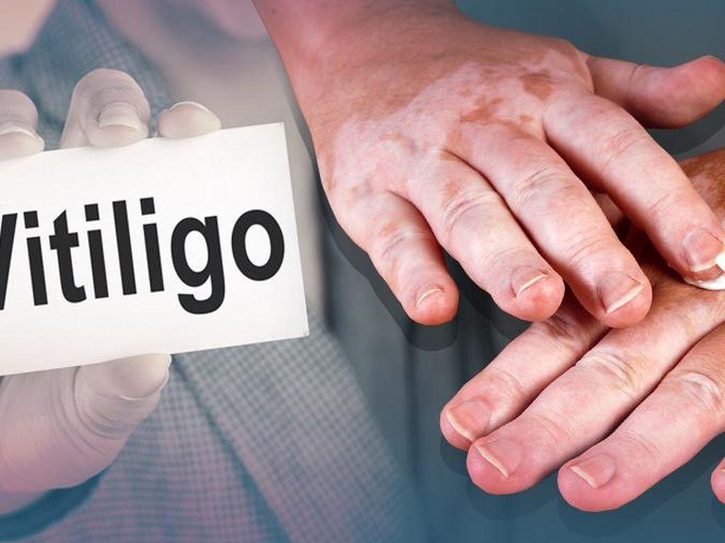 Kulit Belang karena Vitiligo