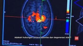 Obesitas Picu Degenerasi Otak