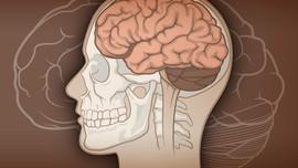 Angka Kerugian Akibat Demensia