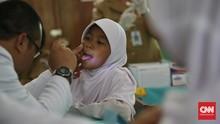 Virus HPV Bisa Menular Lewat Mulut dan Tangan