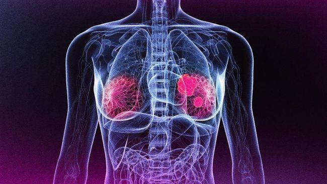 Penemuan Bajakah Sebagai Obat Kanker Masih Tahap Awal