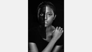 Potret Resah Perkara Rasis di Mata Tompi