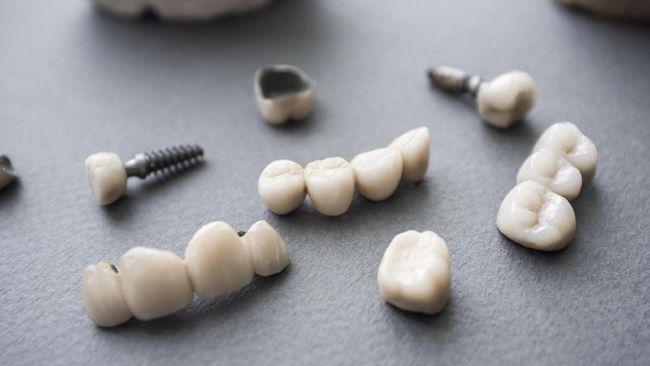 Perhiasan Cantik dari Gigi Manusia