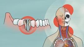 Gigi Berlubang Berisiko Sebabkan Kematian