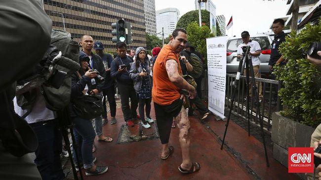 Ketika Korban dan Terduga Dalang Bom Thamrin Berpelukan