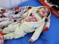 PBB Cari Dana Miliaran Dolar tuk Tuntaskan Kelaparan di Yaman