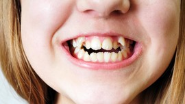 Lima Kebiasaan Buruk Penyebab Gigi Tak Teratur