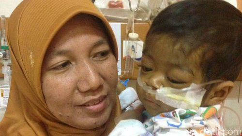Perjuangan Naura Selesai, Bayi Pengidap Atresia Bilier Ini Telah Berpulang