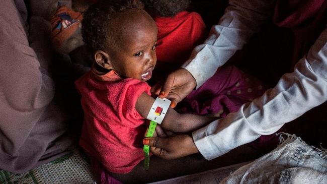 PBB meminta negara-negara dunia mengumpulkan dana sebesar $825 juta untuk membantu 6,2 juta warga Somalia, sekitar separuh dari total populasi negara itu seutuhnya.(The International Federation of Red Cross and Red Crescent Societies/Handout via REUTERS.)