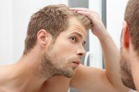 Kebanyakan pasien laki-laki yang mengalami serangan jantung sebelumnya mengeluhkan adanya kerontokan rambut. (Foto: ilustrasi/thinkstock)
